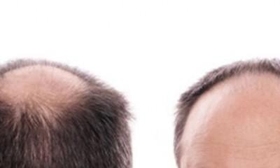 Saç Ekiminde Greft Önemli midir?