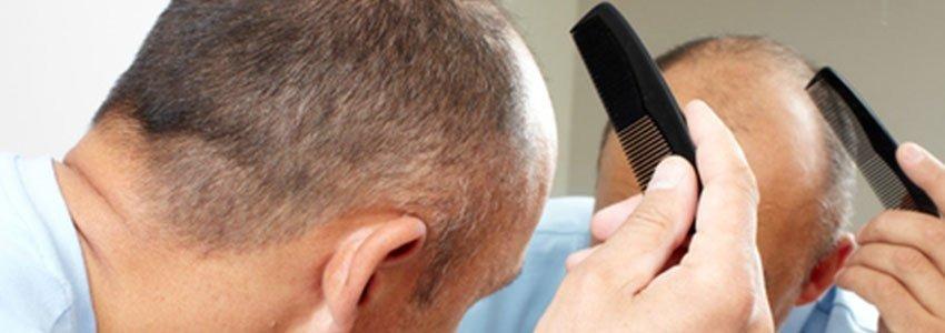 Saç Ekimi Tavsiyeleri, Fiyat Araştırması, Dikkat Edilmesi Gerekenler