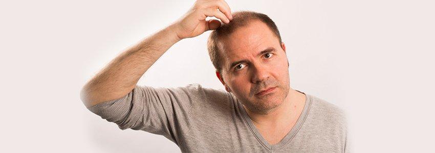 Saç Ekimi Nasıl Yapılır ve Yöntemleri Nelerdir?