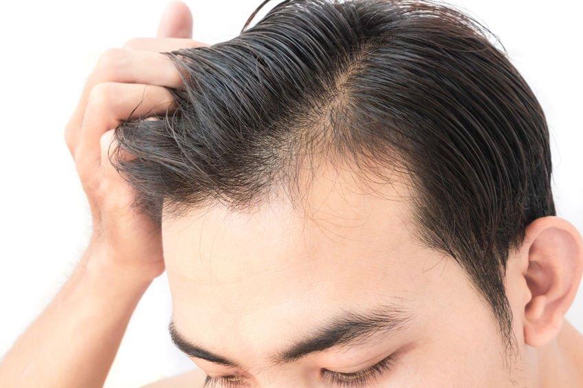 Adana Saç Ekim Tavsiyeleri